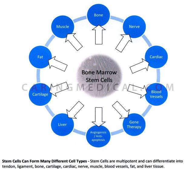 What Is A Stem School Ohio: 59 Best Prolotherapy Images On Pinterest