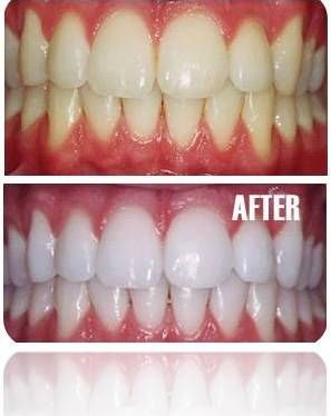 Whiten Your Teeth in 7 Days from Home  _________________________   Dilute it with water at least 50%, don't leave it in your mouth for more than 20 seconds.  Don't Swallow Hydrogen peroxide (H2O2) Don't use it this way more than once per day.  Read Full..