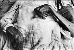 W. Eugene Smith  JAPAN. Minamata. Iwazo FUNABA's crippled hands. She is a victim of the Minamata disease. 1971.