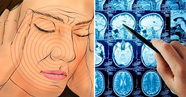 Mrtvice - cévní mozková příhoda s poškozením mozkové tkáně a porucha jeho funkcí. Existují různé důvody, proč se to stalo: nedostatečné zásobení jedné části mozku, embolie nebo trombózy spojené s onemocněním krve, cév a srdce.   Každý člověk by měl vědět, jaké jsou první