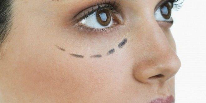 Eliminazione laser di fibromas su una faccia