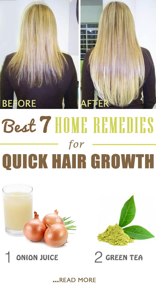When hairs falls more than usual, it is time for you to worry. There are many natural remedies that stimulate hair growth. You just have to choose one!