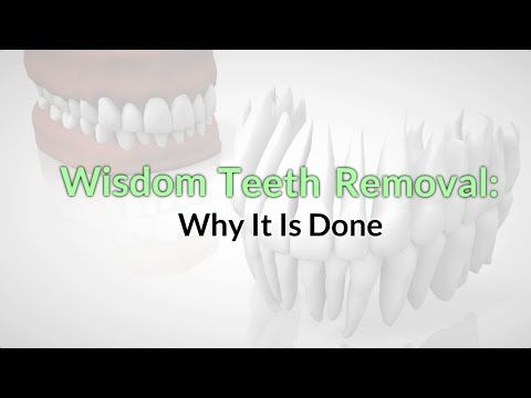 Wisdom Teeth Removal in North Lakes: Why It Is Done www.preventdentalsuite.com.au