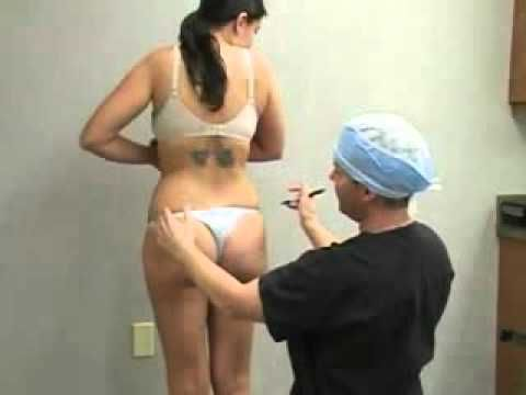 Lipo Procedure with Dr  William Hall   Kelli Documentary