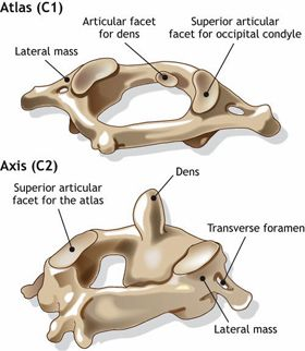Atlas and Axis - X-Rays, Medical Illustrations: Broken Neck (Hangman's Fracture)   Morphopedics