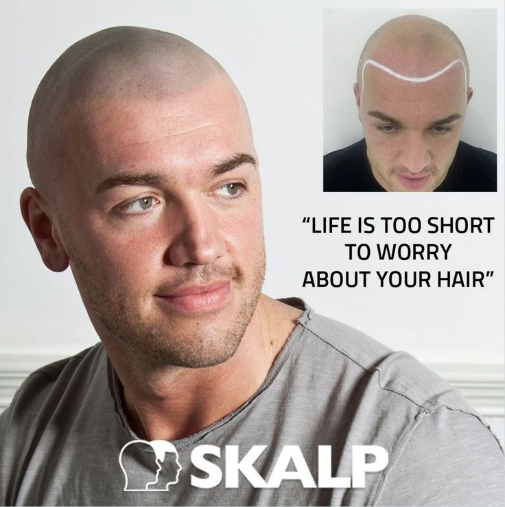 The World's Number One In Scalp Micro-Pigmentation #bald #skalp #scalpmicropigmentation #skalp #hairloss #tattoo #shaved #menshairstyles #hairloss #solution