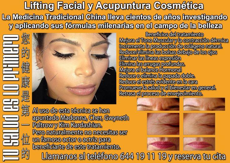 Oferta en tratamientos de Acupuntura Cosmética y Liftin Facial.