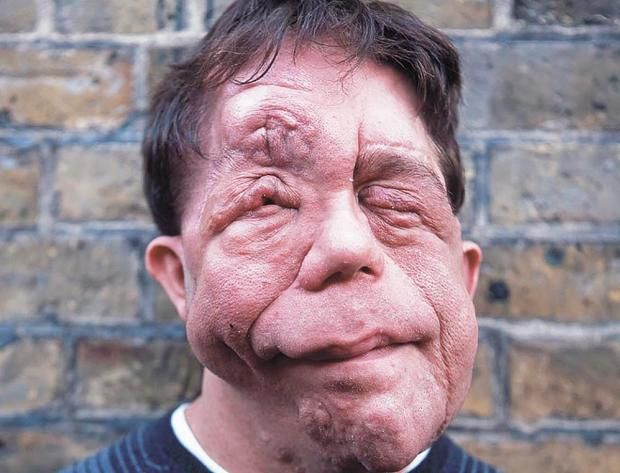 Actor Adam Pearson on disfigurement, working with Jonathan ...
