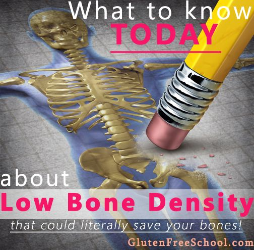 Low Bone Density affects 54 million Americans, over 80% of which are women. And those who are sensitive to gluten have a higher risk of low bone density...