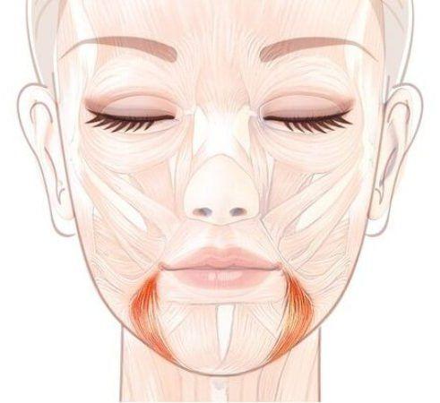 Спазмирование жевательной мышцы приводит к асимметрии лица, потере объема щек, появлению брылей.