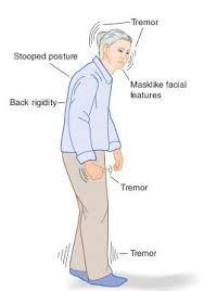 ผลการค้นหารูปภาพสำหรับ body lewy dementia symptoms