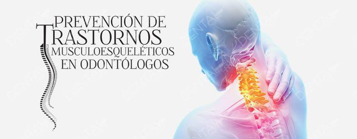 PREVENCIÓN DE TRASTORNOS MUSCULOESQUELÉTICOS EN ODONTÓLOGOS