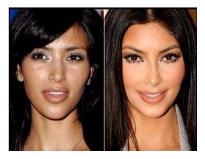 Kim Kardashian Before and After Nose Job | Kim Kardashian Nose Job