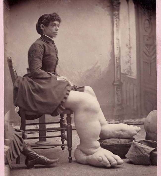 """Fannie Mills, also known as """"The Ohio Big Foot Girl."""" She suffered from a rare disorder known as """"Milroy's Disease"""" which causes uncontrolled growth in the feet and legs."""