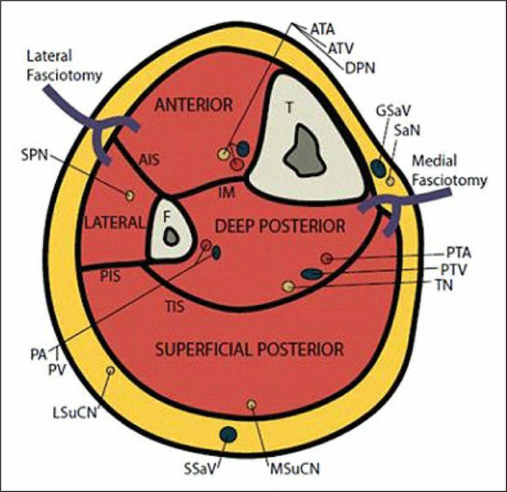 Axial section of the lower leg. Abbreviations: AIS, anterior intermuscular septum; ATA, anterior tibial artery; ATV, anterior tibial vein; DPN, deep peroneal nerve; F, fibula; GSaV, great saphenous vein; IM, interosseous membrane; LSuCN, lateral sural cutaneous nerve; MSuCN, medial sural cutaneous nerve; PA, peroneal artery; PIS, posterior intermuscular septum; PTA, posterior tibial artery; PTV, posterior tibial vein; PV, peroneal vein; SaN, saphenous nerve; SPN, superficial peroneal nerve…