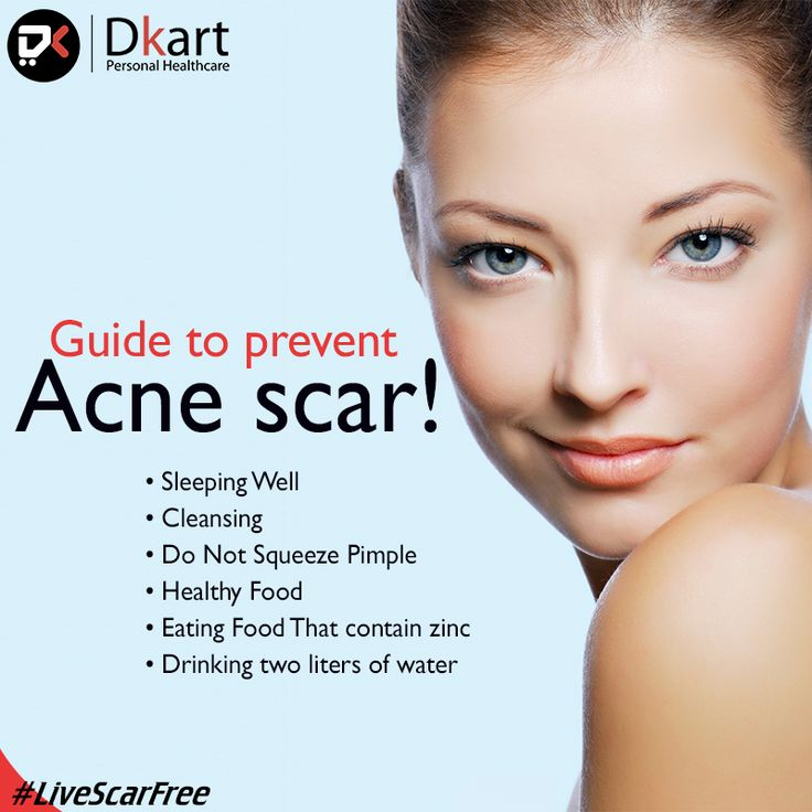 Guide To prevent Acne #Scar! #LiveScarFree