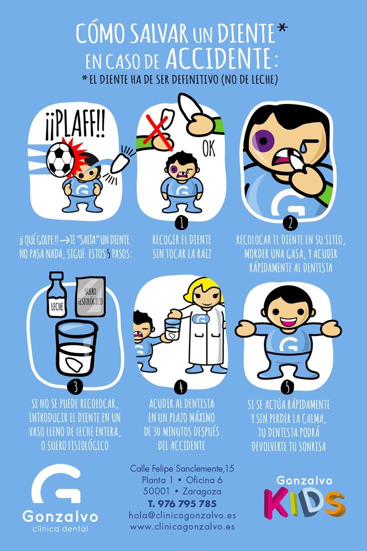#GONSEJO Nº01: Cómo salvar un diente definitivo (no de leche) en caso de accidente.