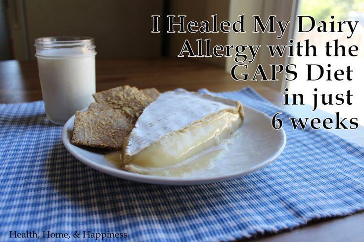 How I healed my dairy allergy in 6 weeks. dairy allergy gaps diet