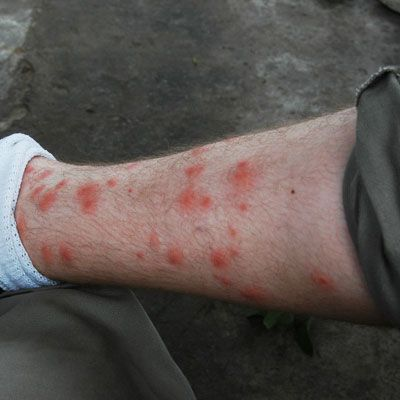 Itchy Red Welts From Chigger Bites On A Man S Leg Good