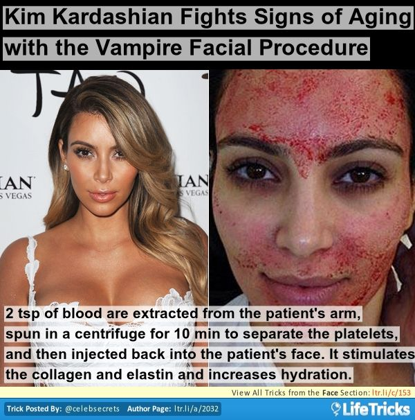 Face - Kim Kardashian Fights Signs of Aging with the Vampire Facial Procedure (OUCH!)