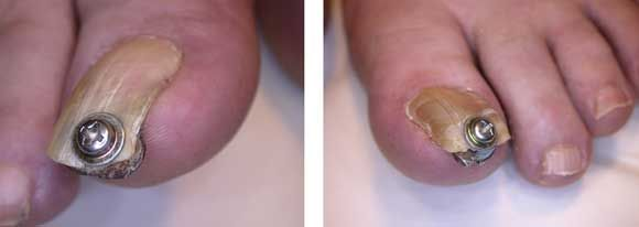 ingrowing toe nail craft work ????
