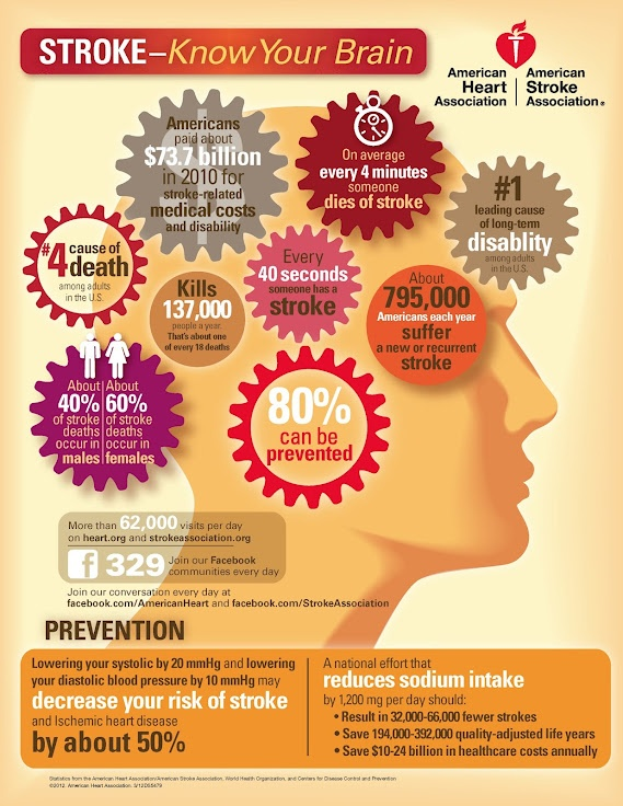 Stroke facts from the American Heart Association and the American Stroke Association.