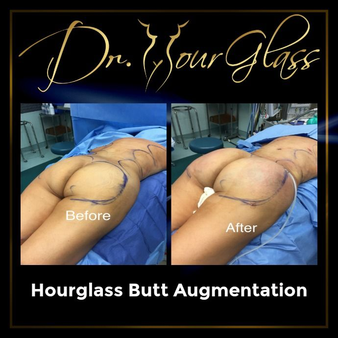 Did you know that some evolutionary psychologists believe that men prefer women with bigger and fuller butts? It only means that women with fuller butts are more attractive than women who happen to have flat or small butts. If you want to enhance your behind then this is your chance to get to know more about a procedure that most women prefer today, it is called Hourglass Butt Augmentation. Here's one of the best results of this surgical procedure: