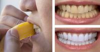I denti ingialliti e macchiati sono sicuramente un difetto estetico, oltre ad indicare una scarsa [Leggi Tutto...]