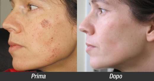 Come rimuovere le macchie della pelle con il prezzemolo