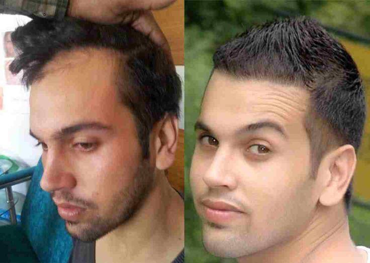 Haartransplantation Erfahrungen - Vorher/ Nachher-Bild