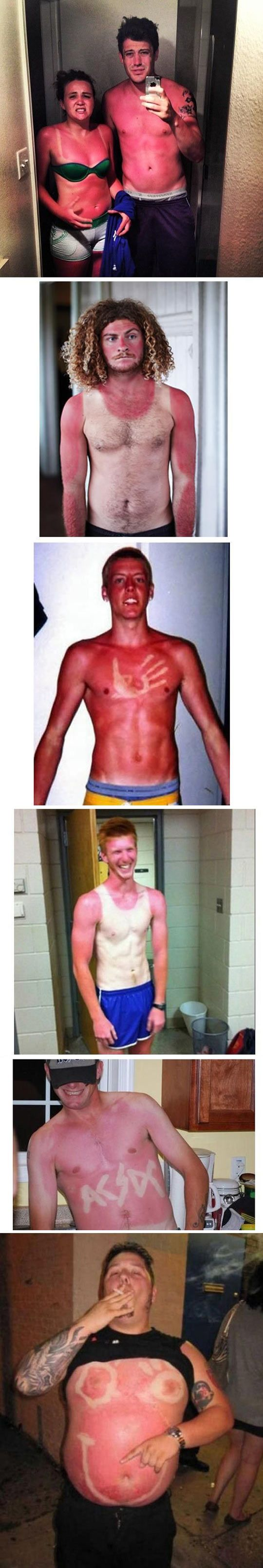 Pale people summer problems … the second guy makes me laugh every time