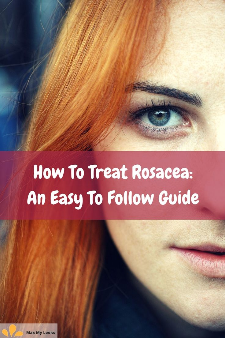 How To Treat Rosacea An Easy to Follow Guide How to