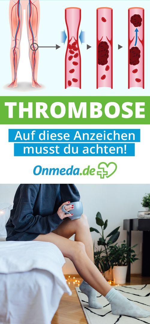 Du hast Angst, eine Thrombose zu haben? Auf diese Symptome solltest du achten!