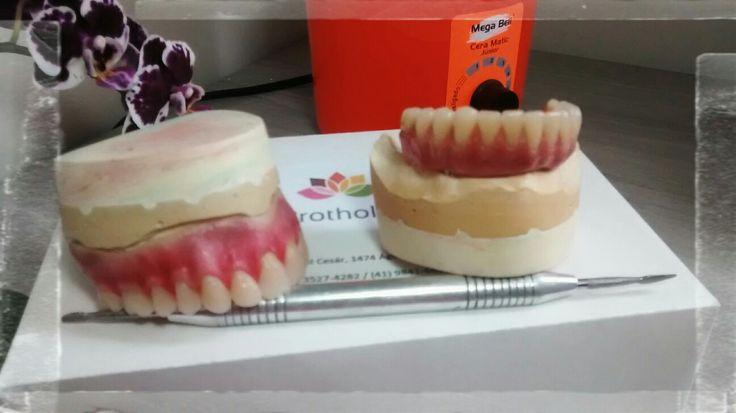 #protocolo #protesetotal #protese #prothetic #job #lab #laboratorio #implante #implantes #branemark #curitiba #dentista #dentist #dente #protholab #job #planejamnetoetudo