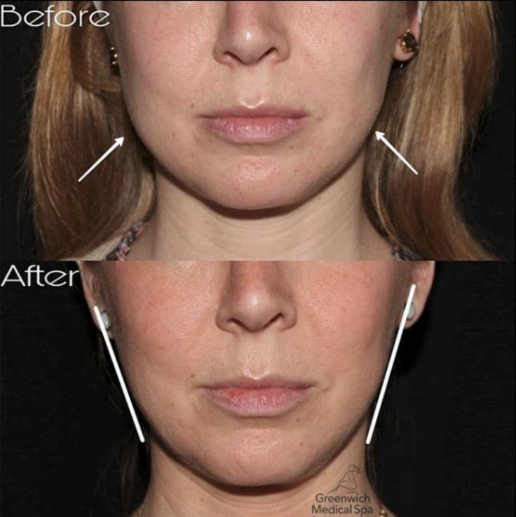 Plastische Chirurgie, um das Gesicht abzunehmen