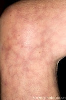 Priceless Electrical Activity: The shocked skin - livedo reticularis or cutis marmorata?