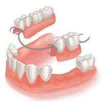 Partial Dental Bridge                                                                                                                                                                                 More