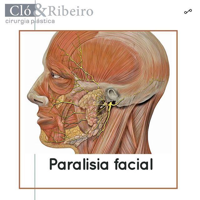 _ Paralisia facial  _ Os músculos faciais se contraem dando expressão à face através da inervação motora proveniente de um importante nervo: o nervo facial.  _ Nos casos em que este nervo sofre alguma compressão interrupção ou secção surge uma condição que se entitula paralisia facial.  _ Este quadro é variável e pode acometer desde um território extenso da face até pequenos setores.  _ Algumas patologias faciais podem cursar com este quadro como por exemplo os tumores da glândula parótida…