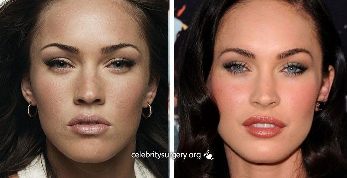 Celebrities Plastic Surgery transformations 2015 - YouTube