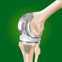 Que savez-vous sur l'arthrite ?
