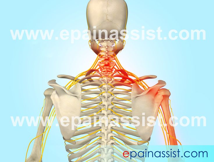 Guide to know what is Cervical Radiculopathy which is also known as cervical disk syndrome, herniated inter vertebral disk, herniated nucleus pulposus (HNP), prolapsed inter vertebral disk (PIVD), ruptured disk, and slipped disk. Read more…  http://www.epainassist.com/diseases-and-conditions/cervical-radiculopathy/what-is-cervical-radiculopathy