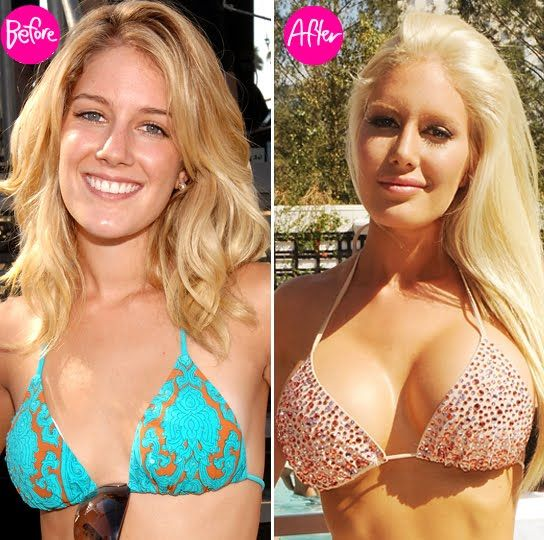 Celebrities With Plastic Surgery Heidi Montag Courteney: 494 Best Images About Transformation On Pinterest