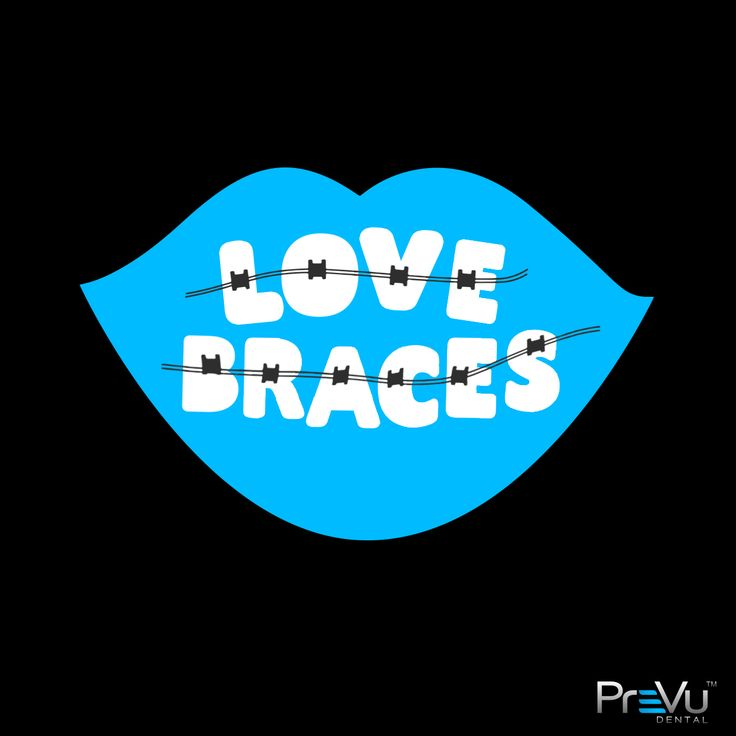 Okay, maybe you won't love having #braces; but you will love the way your #teeth look when they are straight! There are many options to metal braces that you can consider: #invisalign #clearcorrect #mtmclearaligners #sixmonthsmiles #insignia #incognito. Many times, you can be treated by your #family #dentist who may have gone through additional training..or you may need to see an #orthodontist. Find out your options, and to see how #orthodontics can dramatically change your look ask your…