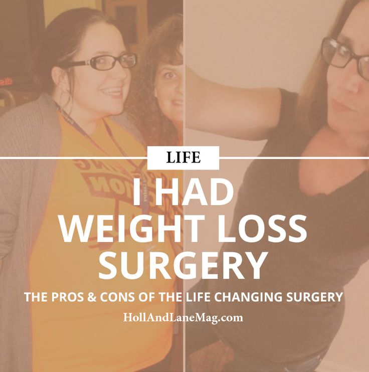 Get this issue FREE. Weight Loss Surgery | Medical | Weight Loss