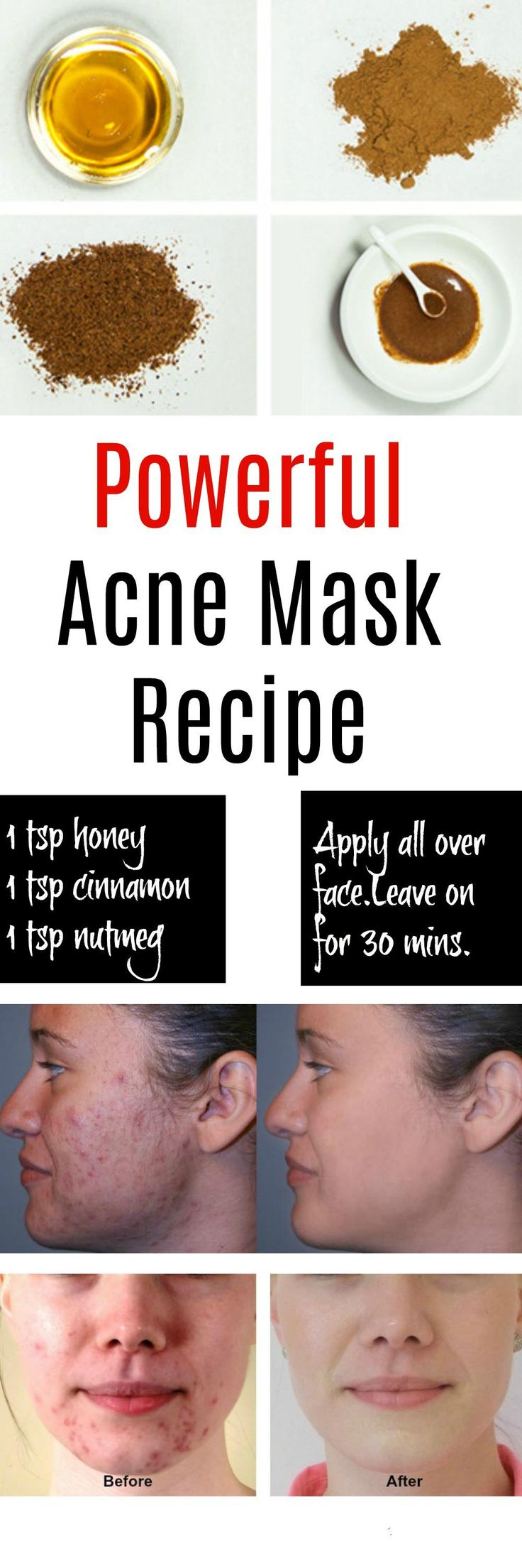 Natural Acne Mask Recipe This natural acne mask works really well, especially for stubborn acne and cysts because of its powerful ingredients: honey, cinnamon, and nutmeg. Let's take a closer look as to why these ingredients are so beneficial to fight acne.