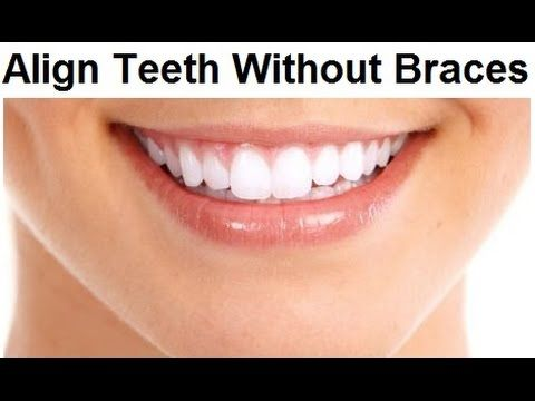 Can I Get Straight Teeth Without Braces by Prof John Mew. It depends....