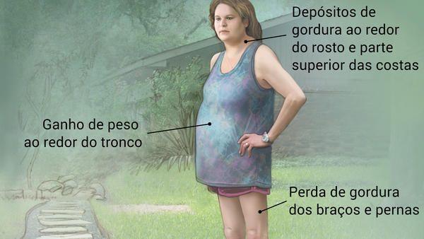 Mulher com síndrome de Cushing, em pé no jardim. Indicação de sintomas comuns, como depósitos de gordura ao redor da face e nas costas e perda de gordura nos braços e nas pernas.