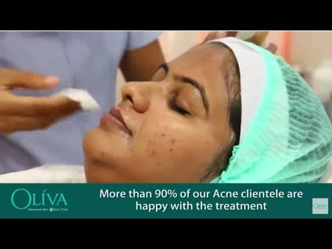 Are you battling with acne every day? Don't worry; no one is spared by acne, not even adults. Do you want to know how to get rid of with acne on your face? Don't panic now you will get Holistic #PimpleRemoval Treatment by expert cosmetic dermatologist at Oliva Clinic in Hyderabad.  This video will demonstrates you about pimple treatment and the reason why you should come to Oliva Clinic for acne treatment.