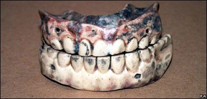 False teeth that are 200 years old---WOW