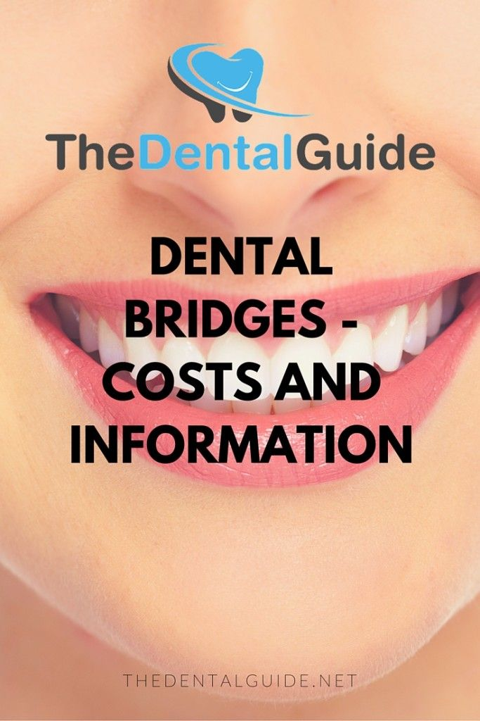 Dental Bridges - Costs and Information - The Dental Guide